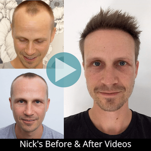 Nick hair restoration before and after photos hair transplant doctors