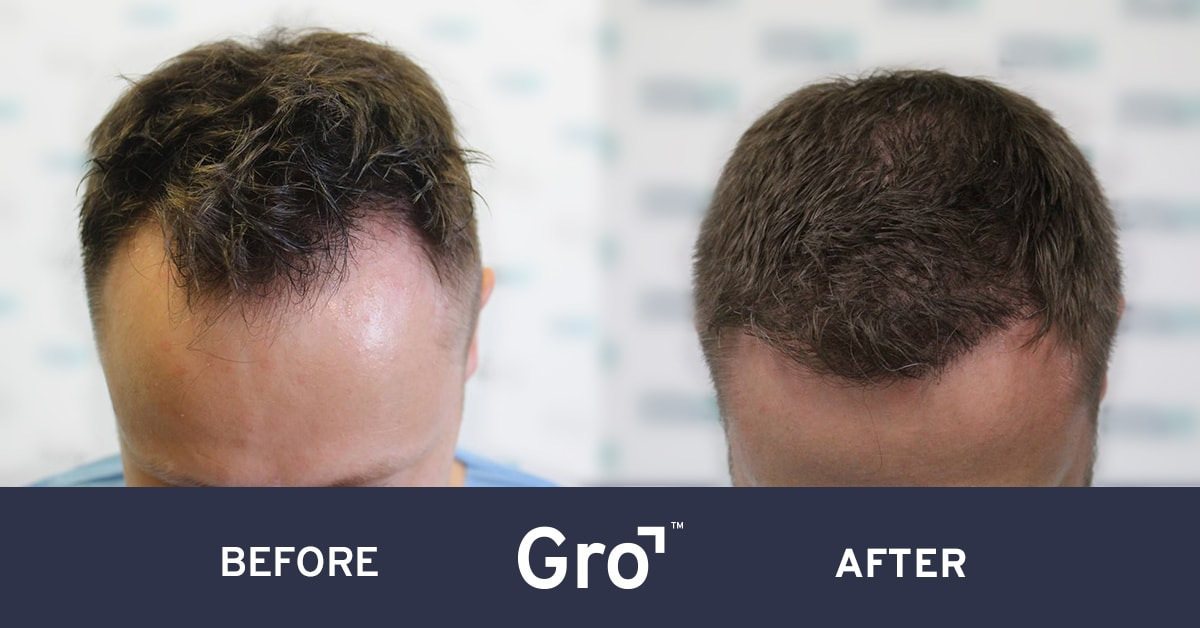hairline lowering procedure before and after photo