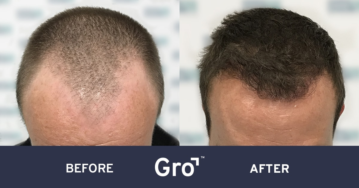 hairline lowering surgery before and after photos